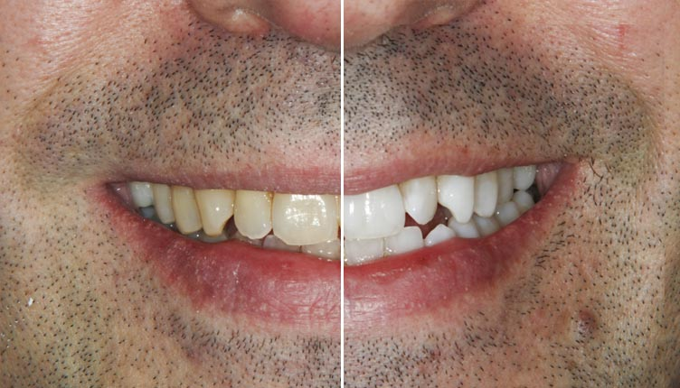 blanqueamiento-dental-led